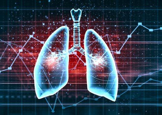 Impacto negativo de la hipertensión pulmonar en el TAVI