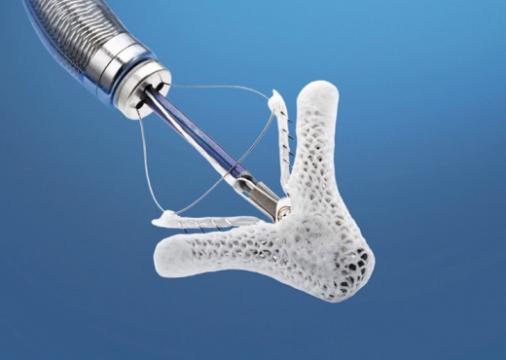 Las ondas venosas pulmonares en el MitraClip tienen valor pronóstico