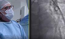 oclusion de fistula arteriovenosa pulmonar