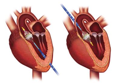 accesos transapical transaortico femoral tavi