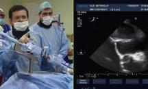 Tratamiento percutáneo de la regurgitación mitral - Mitraclip