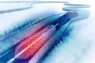 Stent farmacoactivos con plataforma absorbible: ¿generan mayor riesgo de trombosis?
