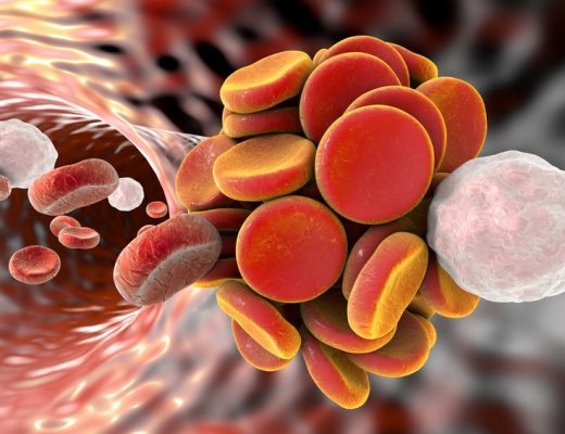 Thromboembol in blood vessel. Clot formation. Red blood cells and white blood cells.