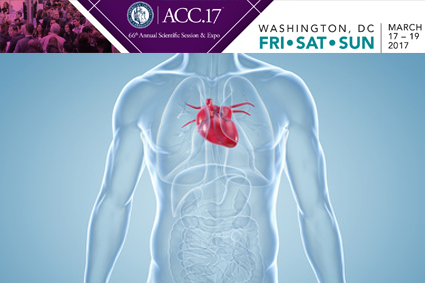 FFT-Guided ACS Revascularization