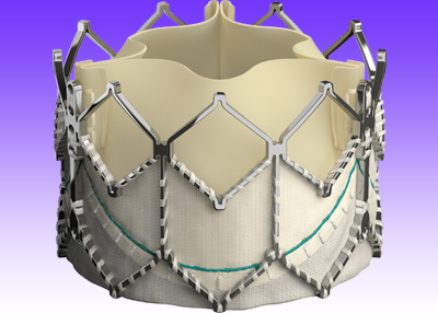 Más evidencia positiva para tratar prótesis biológicas disfuncionantes con la prótesis balón expandible