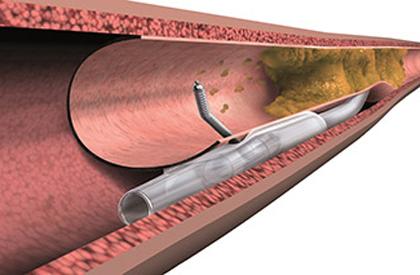 Las angioplastias exitosas en pacientes mayores con oclusiones crónicas totales disminuyen la mortalidad