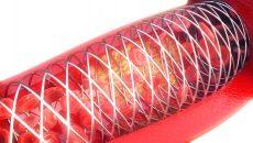 El éxito de la angioplastia sobre las CTO por reestenosis disminuye la mortalidad cardíaca