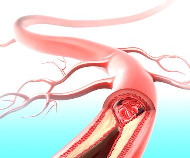 La asistencia previa con Impella 2.5 disminuye la mortalidad a 30 días en el shock cardiogénico por tronco de coronaria izquierda no protegido