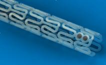 Las plataformas bioabsorbibles no deben ser elegidas por sobre los DES actuales