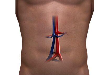 El tratamiento endovascular parece superior a la cirugía en aneurismas rotos