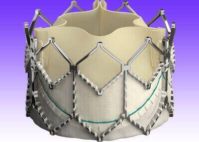 Degeneración de las válvulas biológicas aórticas: un desafío cada vez más frecuente