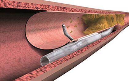 Disnea y oclusiones totales crónicas: un síntoma que podemos aliviar (o al menos intentarlo)