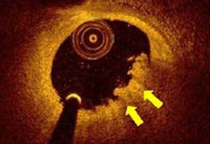 Seguimiento con OCT de las erosiones de placa con tratamiento médico y sin stent