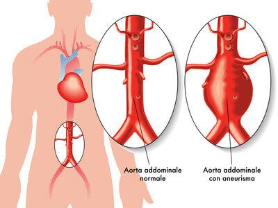 Riesgo de isquemia colónica luego de la reparación de aneurisma de aorta abdominal