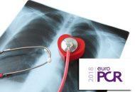 OxAMI-PICSO: oclusión del seno coronario: mejorar la función microvascular y reducir el tamaño del infarto