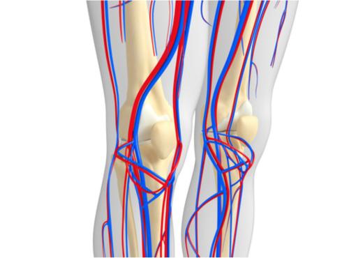 Periférica artéria estenose da