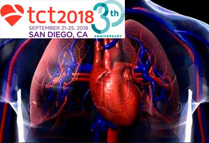 TCT 2018   PADN-5: Denervación pulmonar en hipertensión pulmonar combinada pre y post capilar