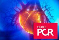 EuroPCR 2019 | TRILUMINATE: Reparación tricuspídea con clip mejora la insuficiencia y la calidad de vida