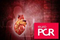 EuroPCR 2019 | El seguimiento a largo plazo de los nuevos bloqueos de rama izquierda post TAVI es tranquilizador con ciertas precauciones