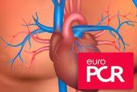 EuroPCR 2019 | La durabilidad del TAVI ofrece ciertas garantías a 8 y 10 años