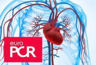 Endocarditis y TAVI, una complicación rara pero devastadora
