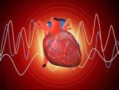 La angina microvascular podría tener gradientes de riesgo