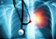 Inflamación crónica, enfermedad coronaria y cáncer: distintas caras de una misma moneda