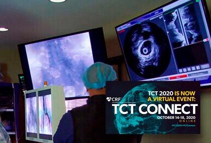 TCT 2020 | Guiar con IVUS todas las angioplastias debería ser nuestro próximo objetivo
