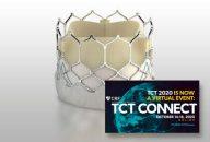 TCT 2020 | Diferencias en stroke entre SAPIEN 3 y Evolut R que generan sorpresa