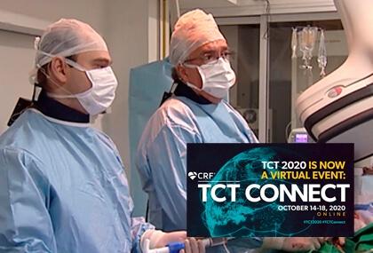TCT OCT placas vulnerables incluso con FFR negativo