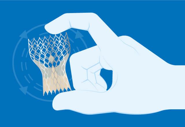Nuevas guías de valvulopatías con actualizaciones clave en TAVI e insuficiencia mitral